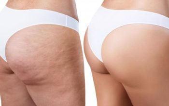 Cellulite Myths vs. Cellulite Facts
