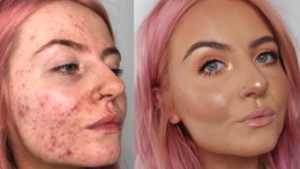 Home Treatment For Cystic Acne Breakouts - Remedy and Solutions