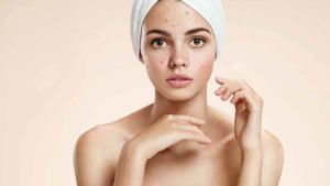 Hormone Imbalance Acne - Hormonal Acne Treatments and Cures