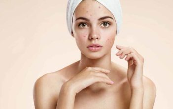 Hormone Imbalance Acne – Hormonal Acne Treatments and Cures
