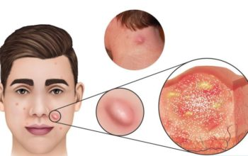 Nodular Acne Treatments – How To Get Rid of Nodule Acne