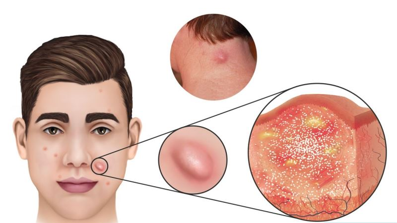 Nodular Acne Treatments - How To Get Rid of Nodule Acne