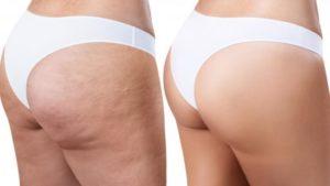 Cellulite Myths vs. Cellulite Facts