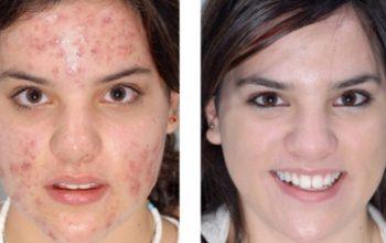 Jojoba Oil Acne Treatment – Is Jojoba Oil Good For Acne?