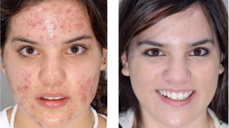 Jojoba Oil Acne Treatment - Is Jojoba Oil Good For Acne?